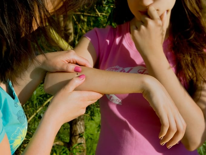 Looking at tick on girls arm